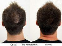 Saç Mezoterapisi Hakkında Bilmeniz Gerekenler